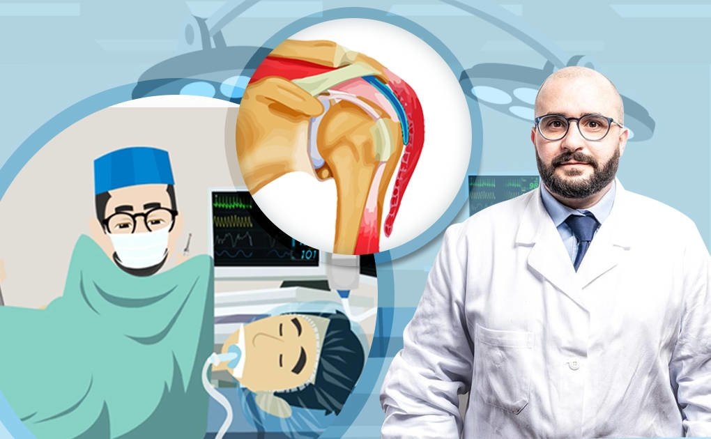 Il dolore alla spalla: cause e soluzioni