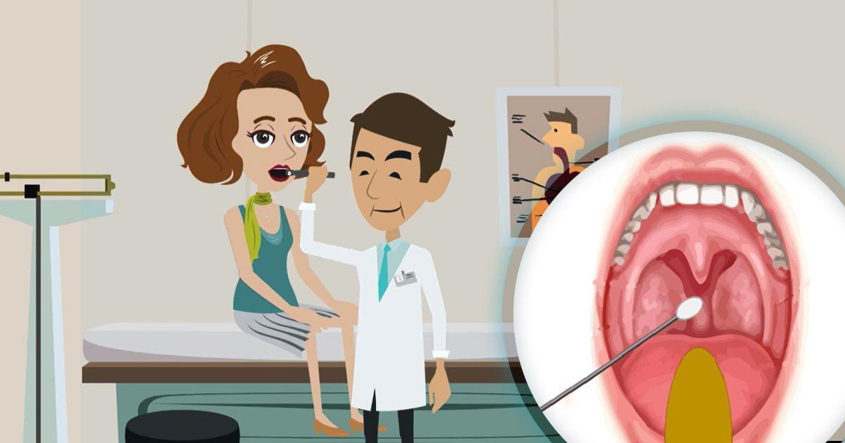 Throat swab: Procedure and costs