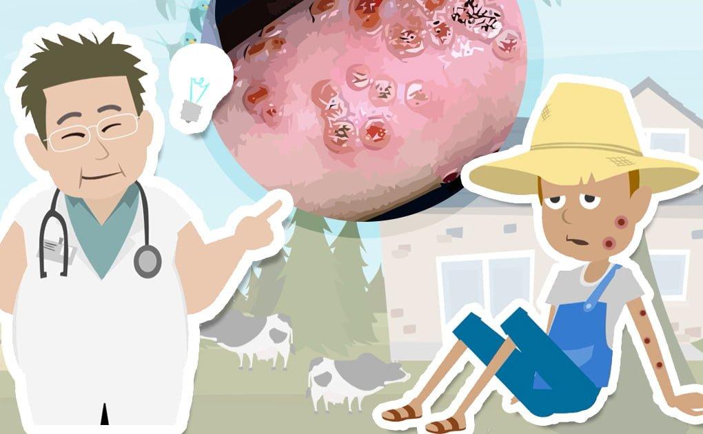 You are currently viewing Le origini dei vaccini e il vaccino contro il vaiolo