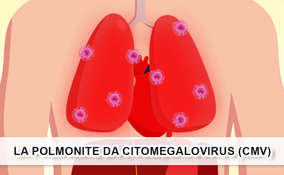 La polmonite da Citomegalovirus (CMV)