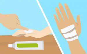 Come curare adeguatamente un'ustione
