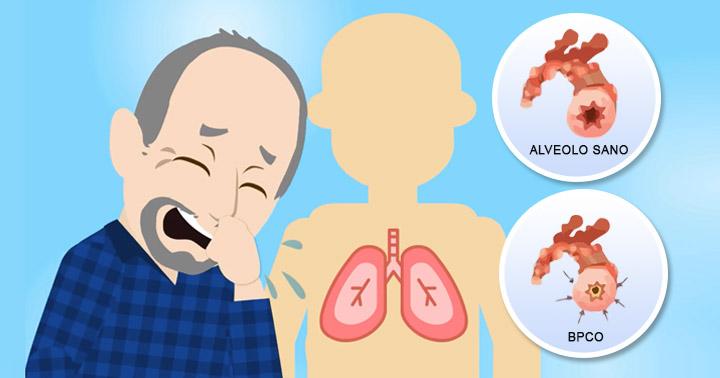 COVID-19 e malattie respiratorie croniche