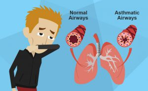 L'asma bronchiale: sintomi, diagnosi e cure