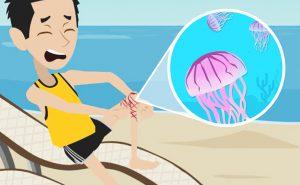 Puntura di medusa: cosa fare?