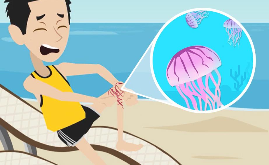 You are currently viewing Puntura di medusa: cosa fare?