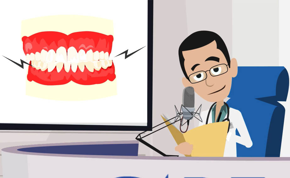 Bruxismo: digrignare i denti nel sonno