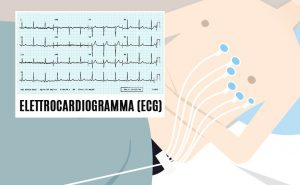 Read more about the article L'elettrocardiogramma (ECG)