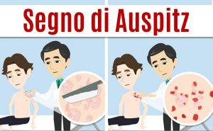 Esame obiettivo: il segno di Auspitz per la diagnosi di psoriasi a placche