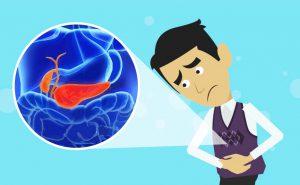 Segni e Sintomi della Pancreatite Acuta