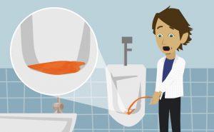 Urine rosse cause rimedi