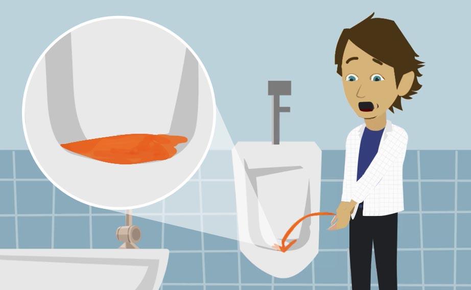 Ematuria: quando c'è sangue nelle urine