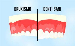 bruxismo denti