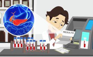 esami di laboratorio nella pancreatite acuta