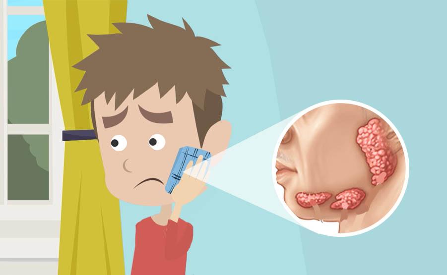 La diagnosi della parotite