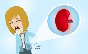 Pielonefrite acuta – Infezione del rene