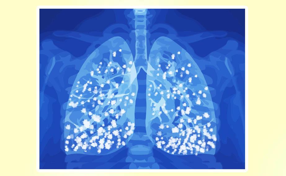 Edema Polmonare: l'accumulo di liquido dentro gli alveoli