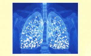 Eziologia dell'edema polmonare: le cause dell'accumulo di liquido negli alveoli polmonari