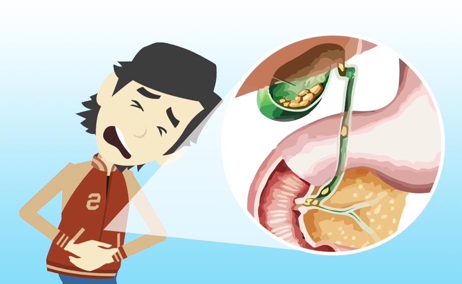 Colica biliare: dolore da infiammazione della via biliare