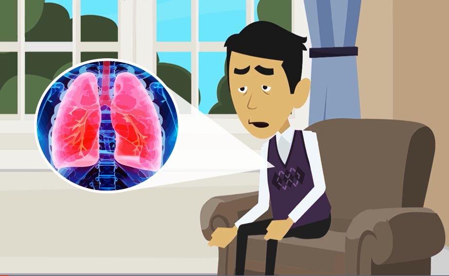 L'insufficienza respiratoria da polmonite COVID-19: da cosa dipende, come si tratta.
