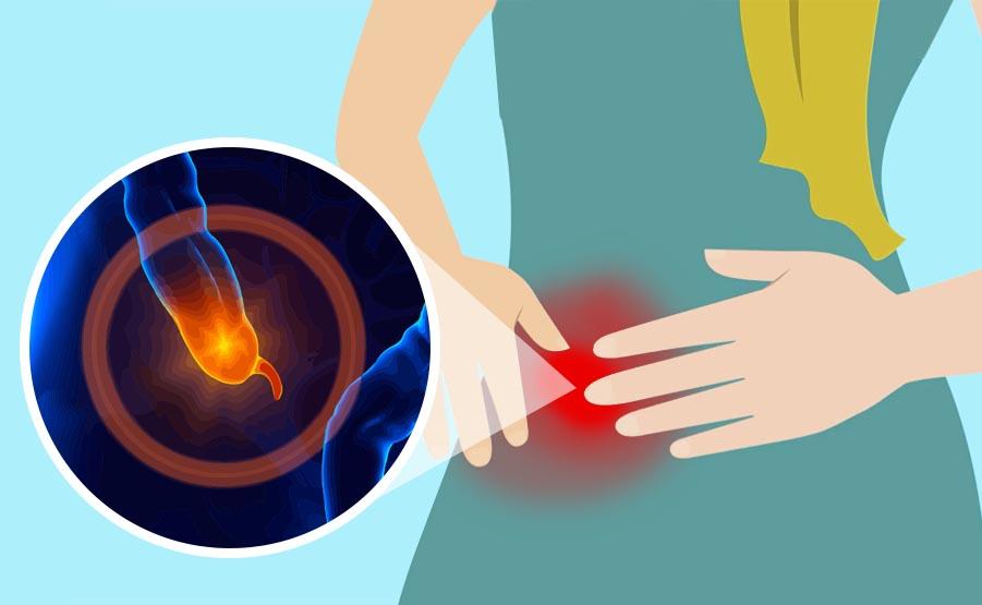 Appendicite acuta: cause, sintomi e terapie