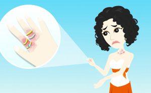 Allergia al nichel – Una delle principali cause di dermatite allergica da contatto