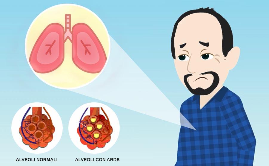 Sindrome da Distress Respiratorio Acuto (ARDS)