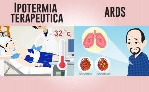 Ipotermia nella ARDS: nuova prospettiva terapeutica?