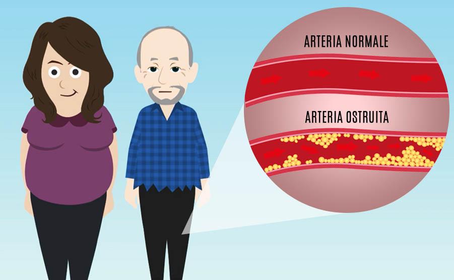 Colesterolo: cos'è e perché tenerlo sotto controllo