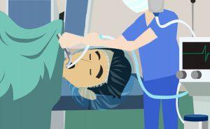 Intubazione tracheale: quando e come si esegue