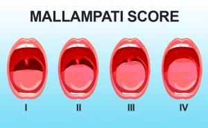 Criteri di Mallampati per l'intubazione difficile