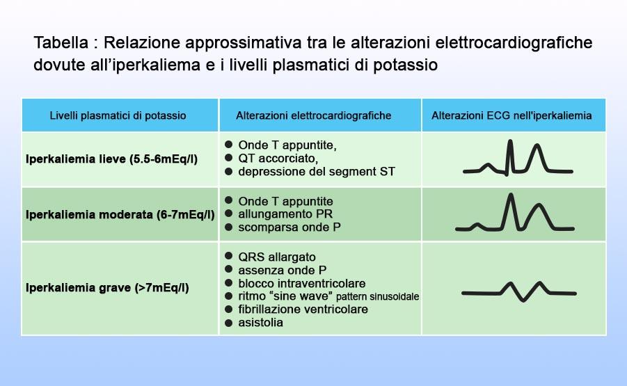alterazioni elettrocardiografiche in corso di iperkaliemia