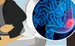 Carcinoma colon-rettale: cause e fattori di rischio