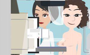 Mammografia come funziona l'esame