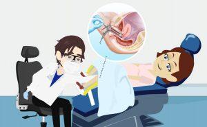 Il Pap Test: in cosa consiste, quando farlo