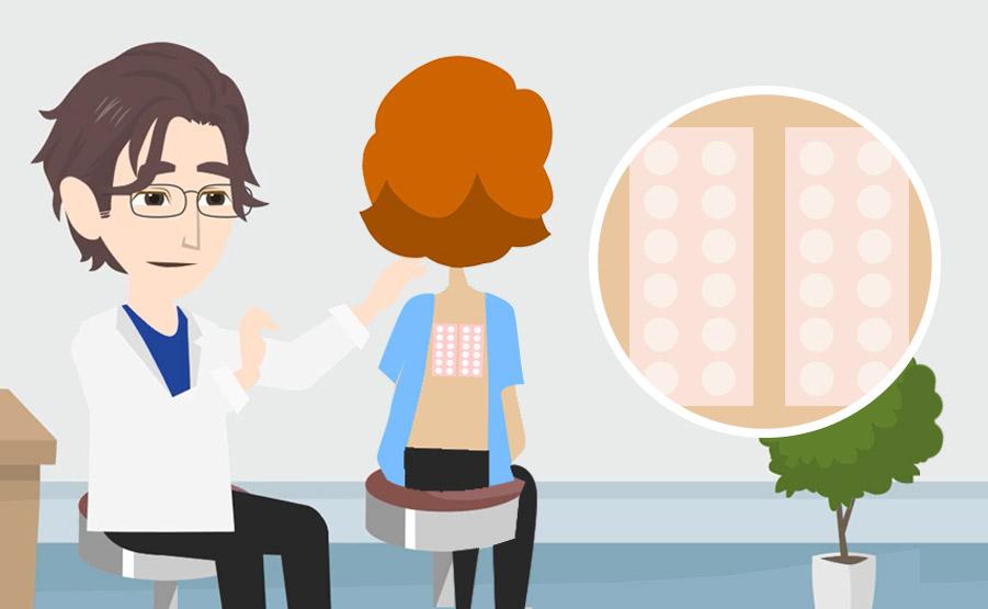 Patch Test – Test epicutaneo: a cosa serve e come si svolge