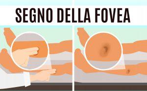 Read more about the article Il segno della fovea valuta l'edema dei tessuti ed è un possibile indicatore di scompenso cardiaco