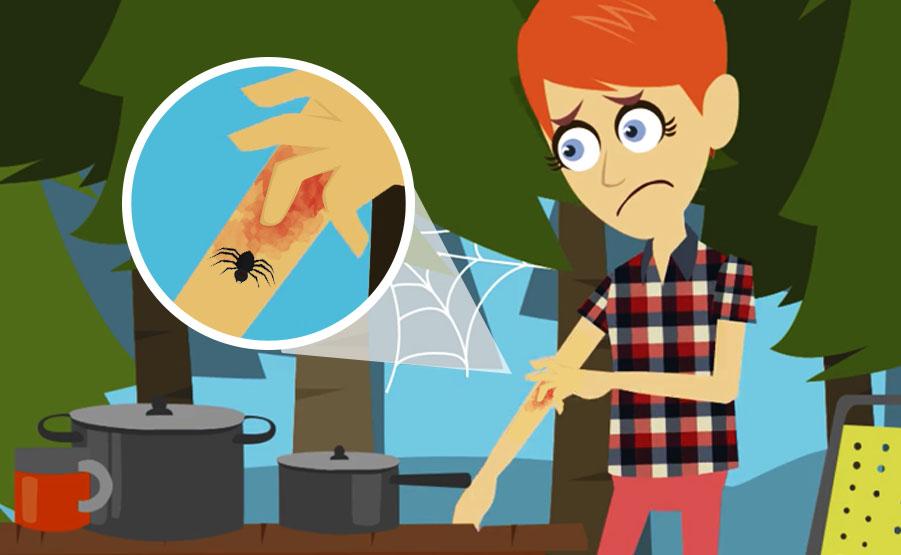 Morso di ragno: cosa fare in caso di puntura di aracnide