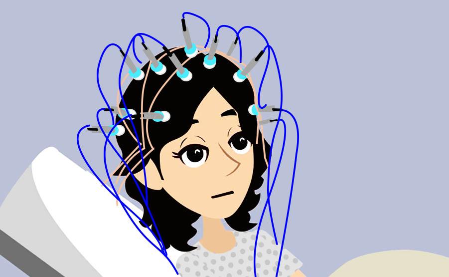 Elettroencefalogramma: elettrodi