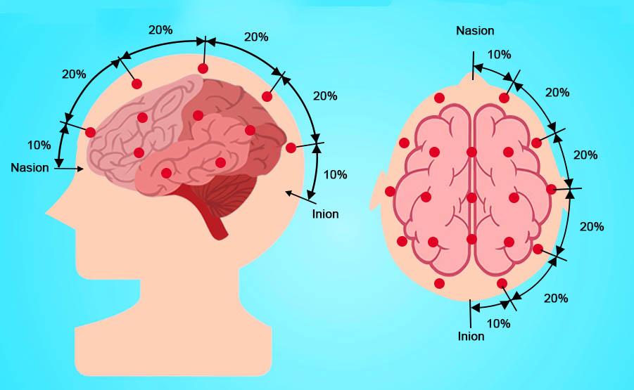 Elettroencefalogramma: posizionamento degli elettrodi
