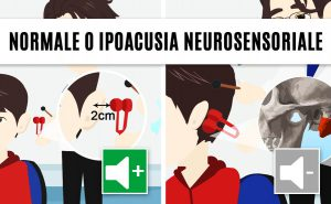 test di rinne positivo: normale o ipoacusia neurosensoriale
